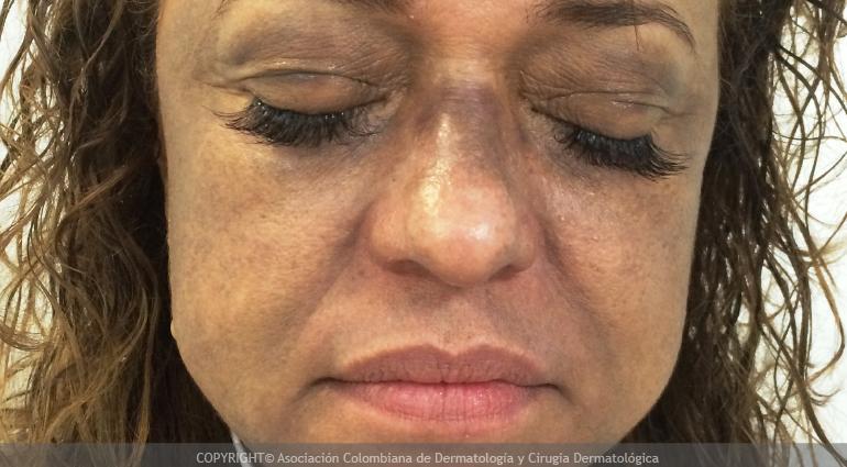 Dermatitis cenicienta